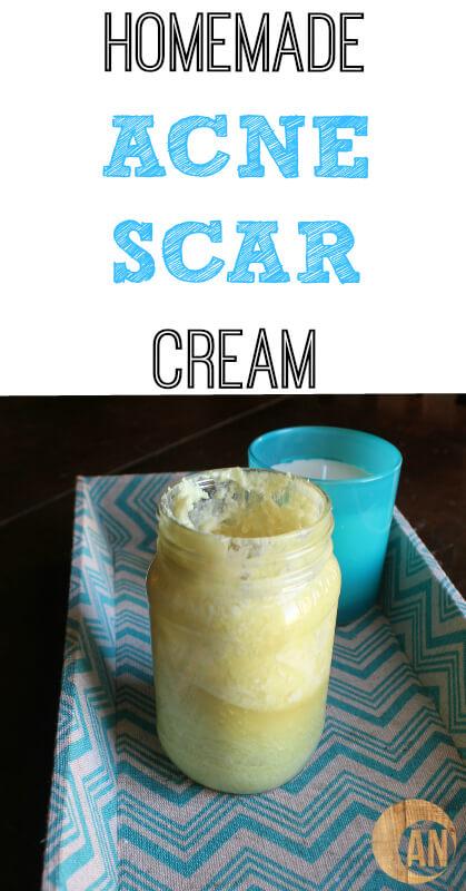 Homemade Acne Scar Cream - Ancestral