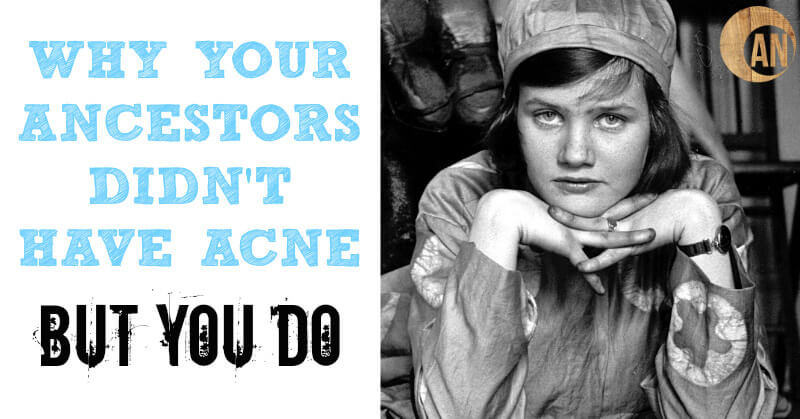 Why Your Ancestors Didnt Have Acne And You Do Ancestral Nutrition