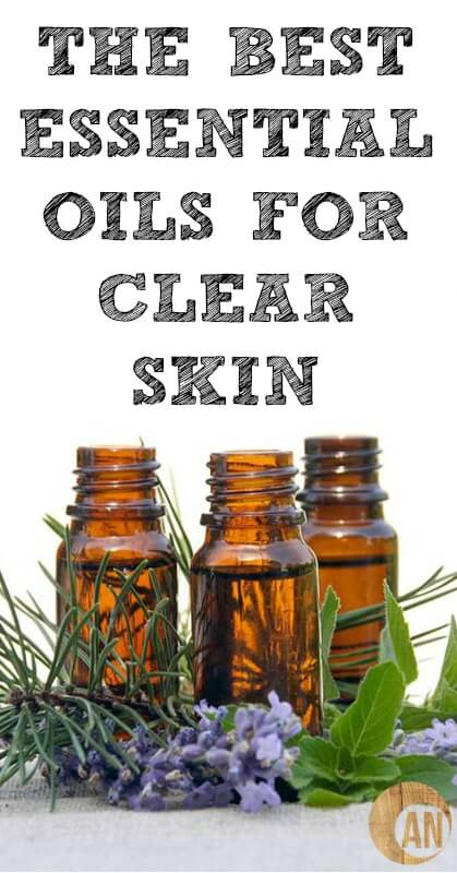 Did you know that acne is a sign of something wrong INside your body?! Once you've cleaned up your gut, try these essential oils to help with acne! #skincare, #acne