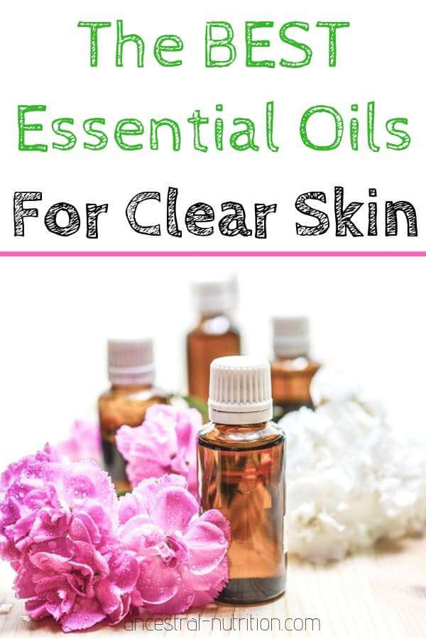 BEST Essential Oils for Clear Skin - find out which natural essential oils will help you clear your skin from acne and make it glow like never before #acne, #skincare