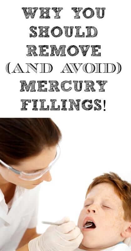Why-You-Should-Remove-And-Avoid-Mercury-Fillings
