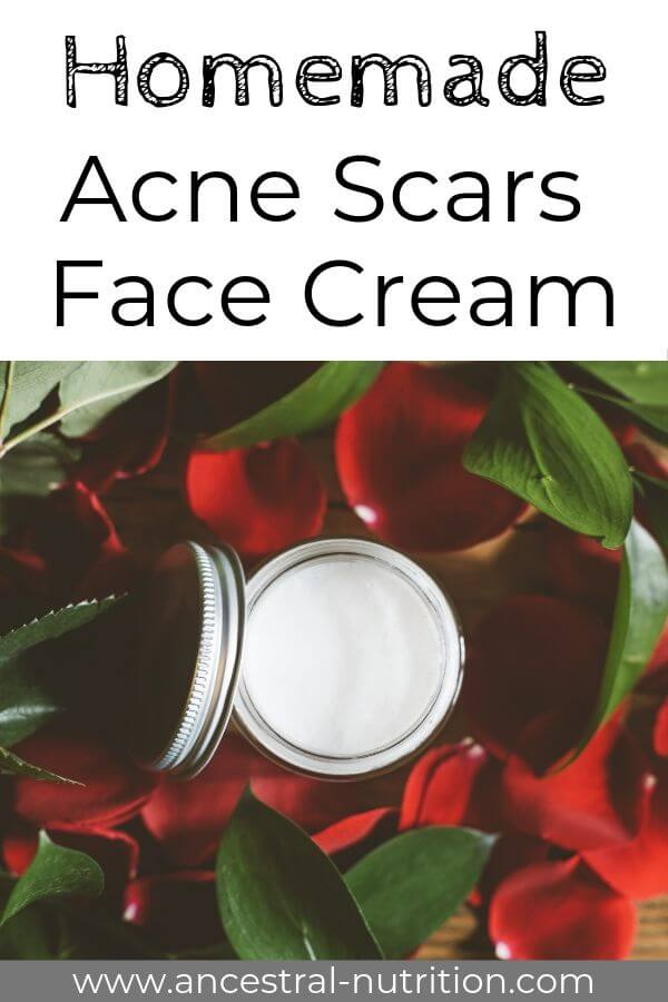 Homemade Acne Scars Cream - this homemade product with cocoa butter and essential oils is one of the most effective natural remedies and will help you get rid of acne scars #acne, #remedies #diy #beauty