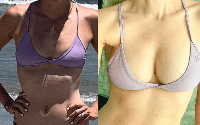 breast augmentation with breast fat transfer before and after shot in a bikini